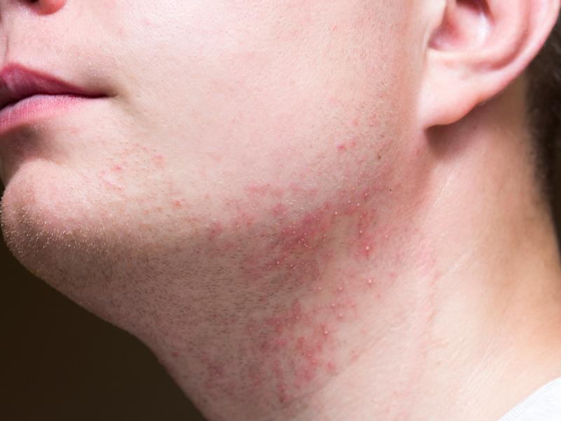 Gereizte und entzündete Haut nach Rasur
